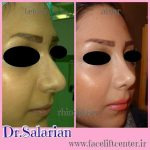persian rhinoplasty before and after