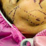 لیفت صورت با جراحی