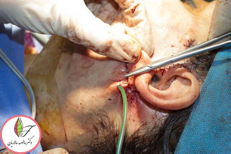 جراحی لیفتینگ صورت