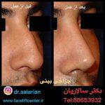 جراحی بینی با قیمت مناسب