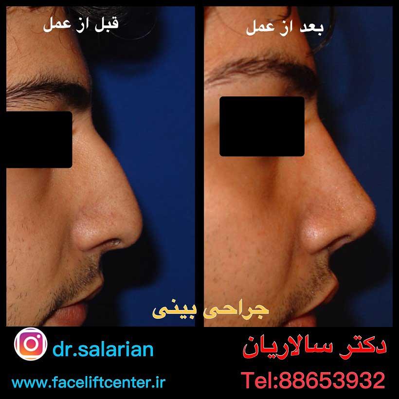 هزینه جراحی بینی در تهران