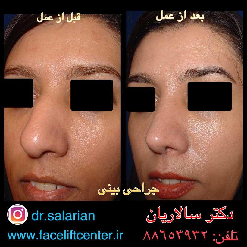 عکسهای قبل و بعد از عمل بینی گوشتی