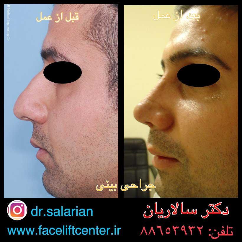 عکس جراحی بینی آقایان