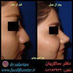 عکس عمل بینی قبل و بعد