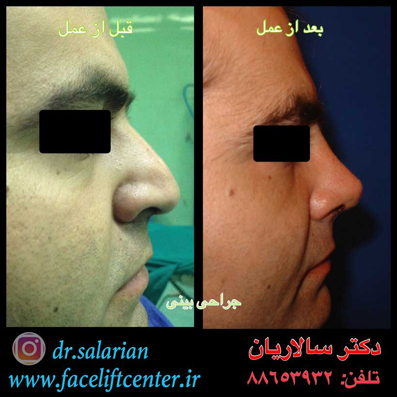 عمل بینی گوشتی