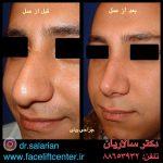 عکس قبل و بعد عمل بینی گوشتی
