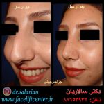 عکس قبل و بعد عمل بینی استخوانی