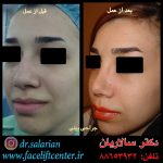 عکس قبل و بعد بینی های گوشتی