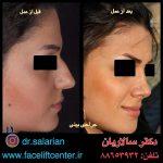 عکس قبل و بعد جراحی بینی