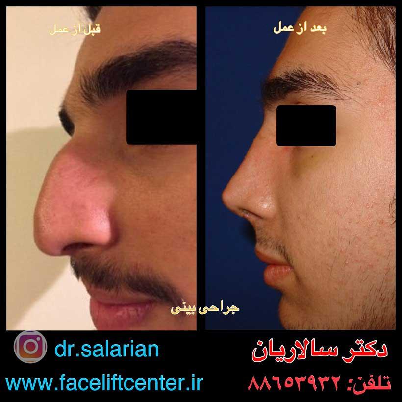 عکس قبل و بعد از عمل بینی