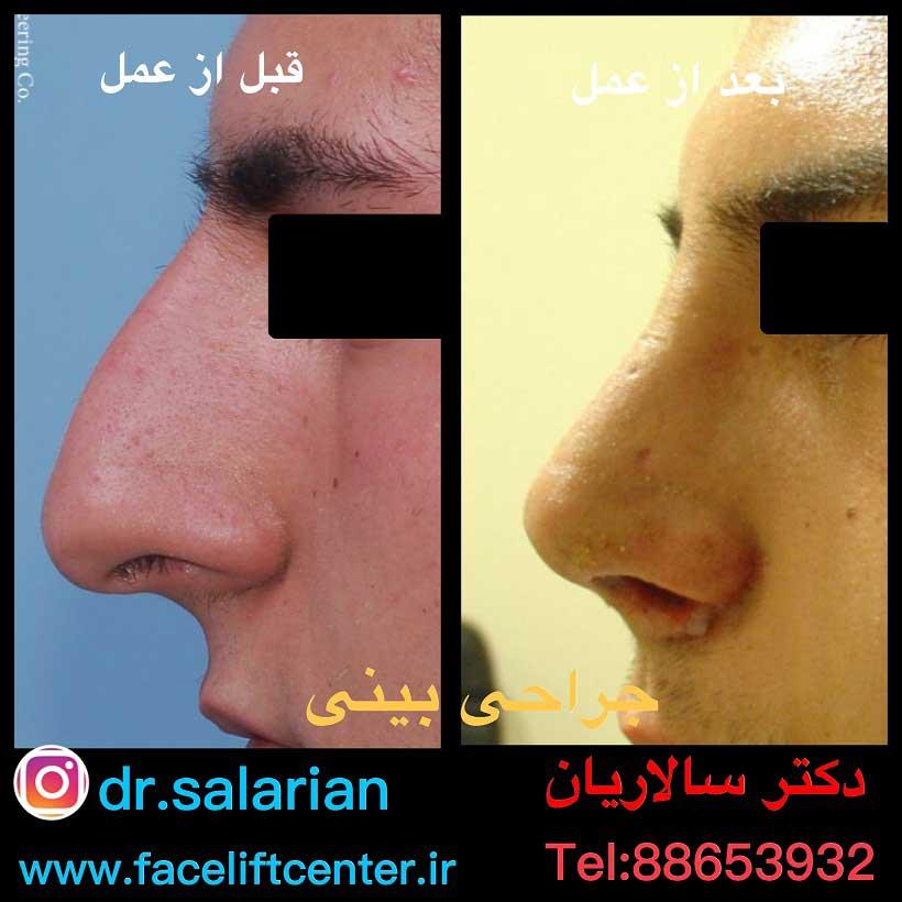عکس جراحی بینی استخوانی