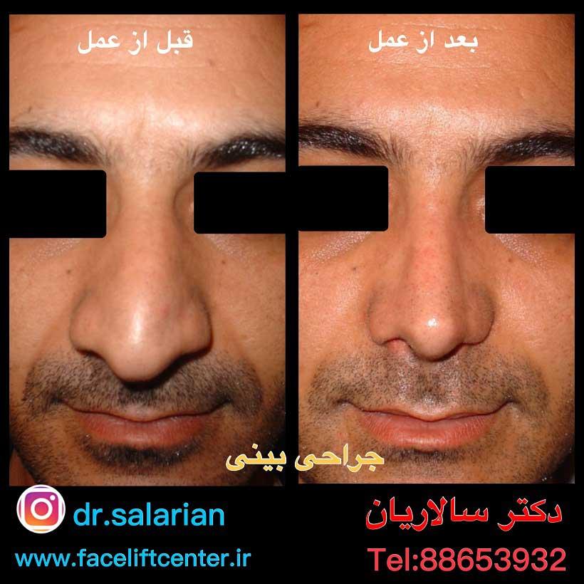 عکس عمل بینی گوشتی