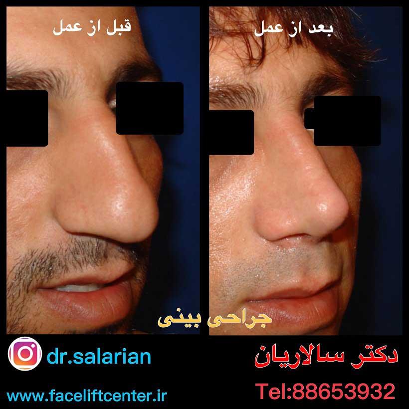 جراحی بینی عکس