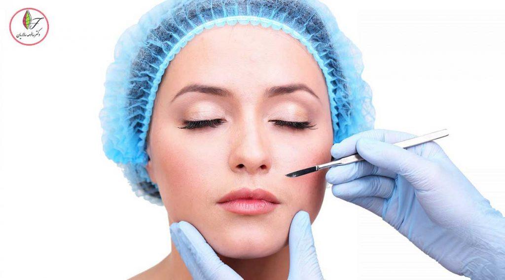 کوتاه کردن لب بالا یا جراحی لیفت لب بالا چیست ؟