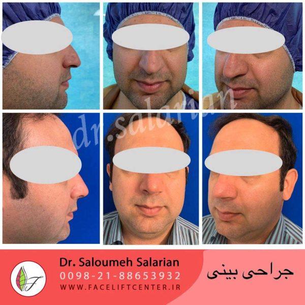 عمل بینی (4)