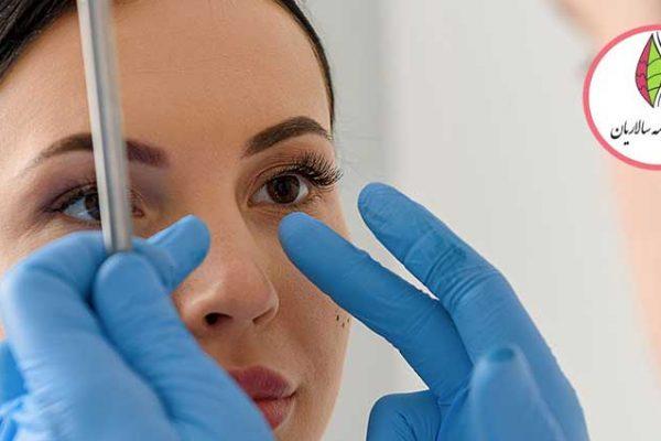 جراحی بینی بسته