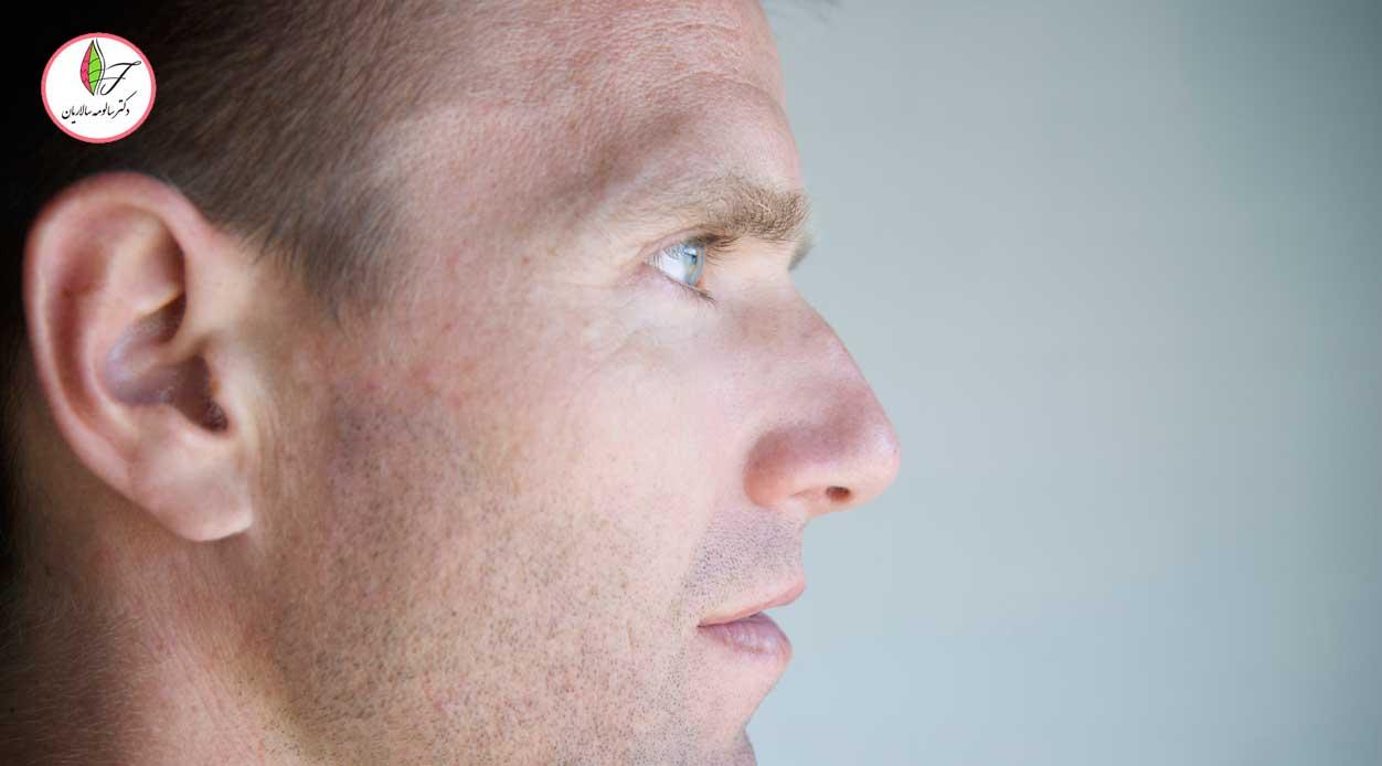 جراحی بینی قوز دار