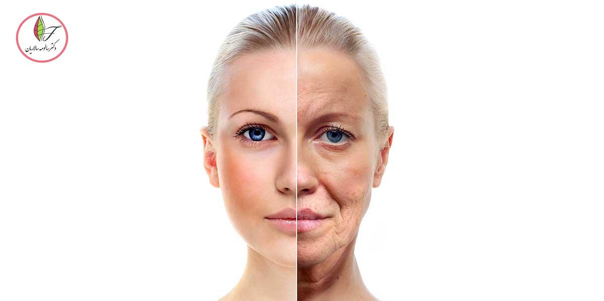 روش های موثر برای رفع افتادگی پوست صورت و گردن
