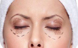 بهترین درمان افتادگی پلک